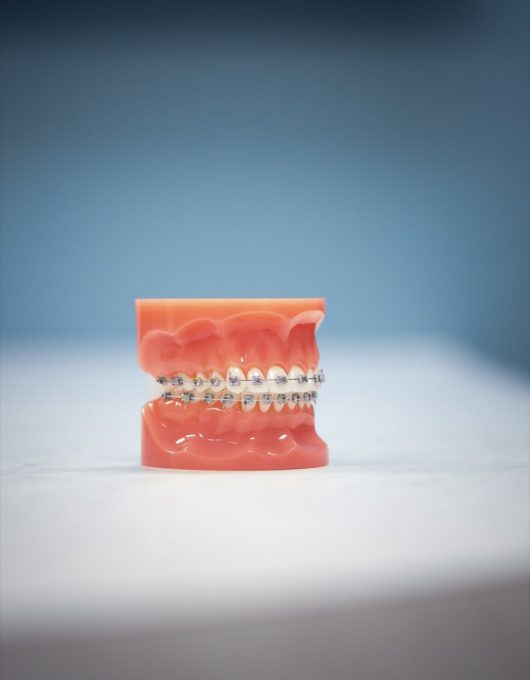 Hentscher Johnson Orthodontics Columbia Illinois Types of Orthodontic Braces 23 530x680 - Self-Ligating Braces - HJO - Orthodontics in Illinois