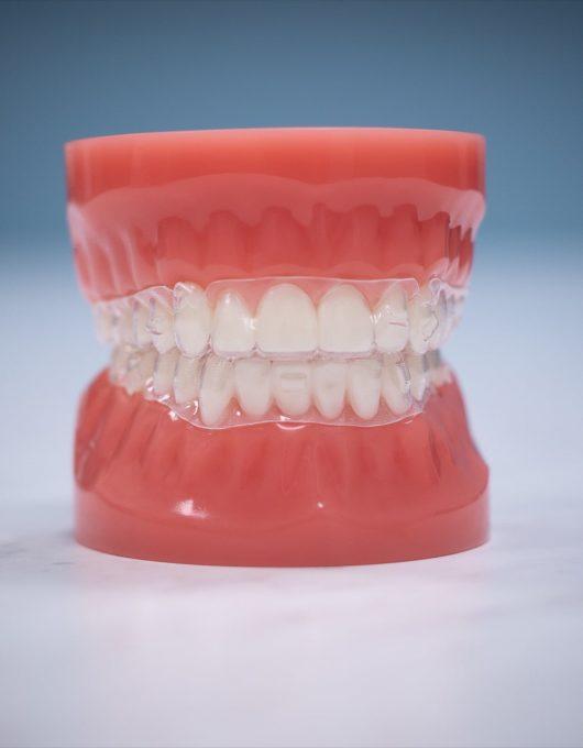 Hentscher Johnson Orthodontics Columbia Illinois Types of Orthodontic Braces 52 530x680 - 3M Clear Aligners - HJO - Orthodontics in Illinois