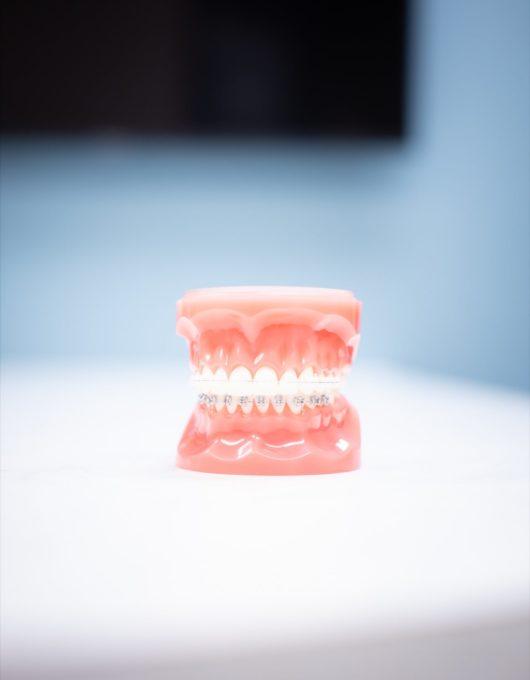 Hentscher Johnson Orthodontics Columbia Illinois Types of Orthodontic Braces 65 530x680 - Clarity Ceramic Braces - HJO - Orthodontics in Illinois