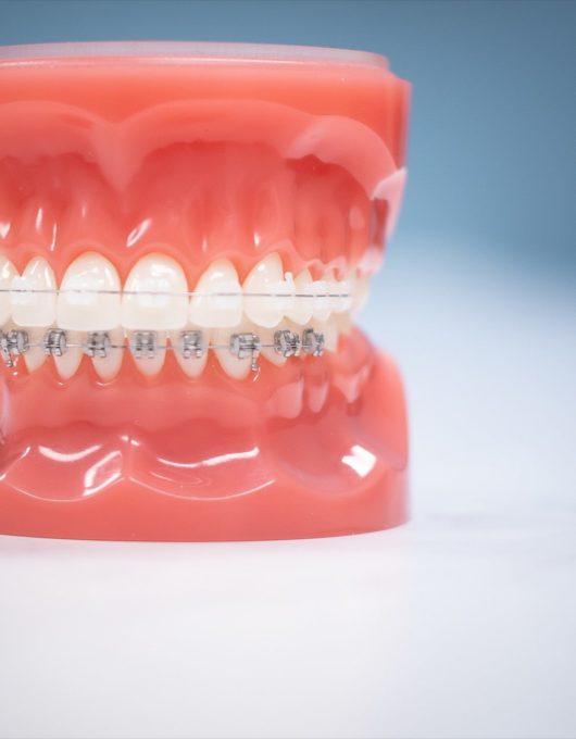 Hentscher Johnson Orthodontics Columbia Illinois Types of Orthodontic Braces 67 530x680 - Clarity Ceramic Braces - HJO - Orthodontics in Illinois