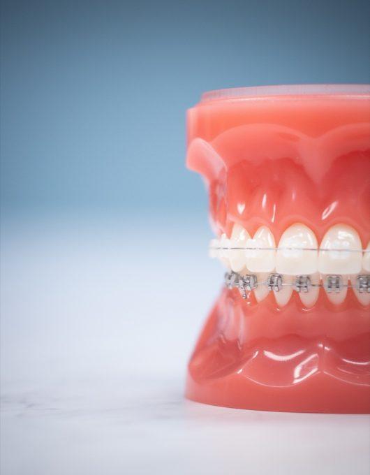 Hentscher Johnson Orthodontics Columbia Illinois Types of Orthodontic Braces 68 530x680 - Clarity Ceramic Braces - HJO - Orthodontics in Illinois